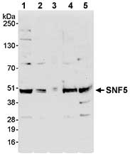 Western blot - SNF5 antibody (ab72289)