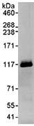 Immunoprecipitation - RBM12 antibody (ab72319)