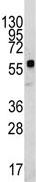 Western blot - KREMEN1 antibody - N-terminal (ab72326)