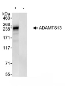 Immunoprecipitation - ADAMTS13 antibody (ab72335)