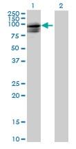 Western blot - SPG7 antibody (ab72424)