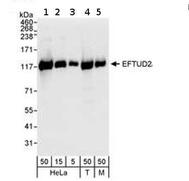Western blot - EFTUD2 antibody (ab72456)