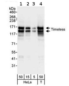Western blot - Timeless antibody (ab72458)