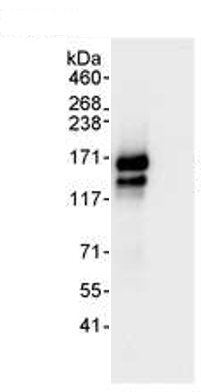 Immunoprecipitation - Timeless antibody (ab72458)