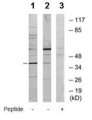 Western blot - YL1 antibody (ab72506)