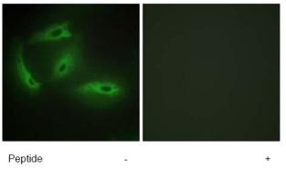 Immunocytochemistry/ Immunofluorescence - CDKL4 antibody (ab72510)