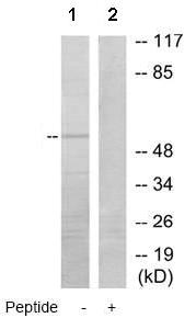Western blot - STEAP3 antibody (ab72513)