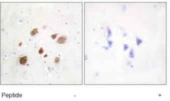 Immunohistochemistry (Formalin/PFA-fixed paraffin-embedded sections) - PNCK antibody (ab72514)