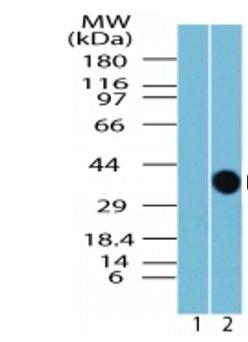 Western blot - GPCR TGR5 antibody (ab72531)