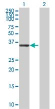 Western blot - AKR1C1 antibody (ab72576)