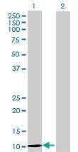 Western blot - DEFA6 antibody (ab72577)