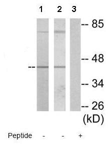 Western blot - MVK antibody (ab72588)