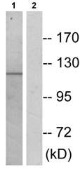 Western blot - CBF antibody (ab72589)