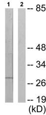 Western blot - HOXA11 antibody (ab72591)