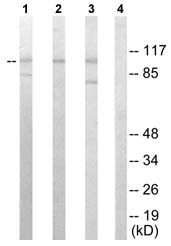 Western blot - Sarcomeric Alpha Actinin antibody (ab72592)