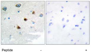 Immunohistochemistry (Formalin/PFA-fixed paraffin-embedded sections) - DUSP4 antibody (ab72593)