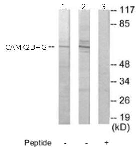 Western blot - CAMK2G + CAMK2B antibody (ab72604)