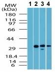 Western blot - GPCR TGR5 antibody (ab72608)
