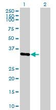 Western blot - SFRS7 antibody (ab72616)