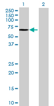 Western blot - SGSH antibody (ab72617)