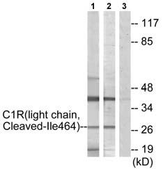 Western blot - C1r antibody (ab72648)