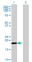 Western blot - MRPS28 antibody (ab72650)