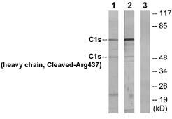 Western blot - C1s antibody (ab72651)