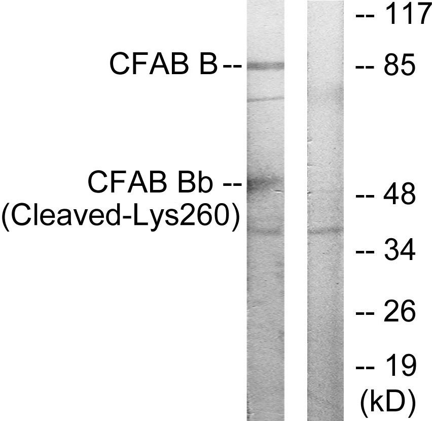 Western blot - Factor B antibody (ab72658)