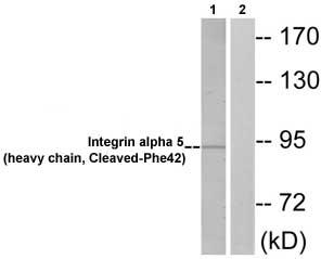 Western blot - Integrin alpha 5 antibody (ab72663)