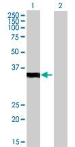 Western blot - VGLL2 antibody (ab72666)