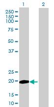 Western blot - ZCCHC13 antibody (ab72667)