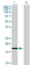 Western blot - MGC34774 antibody (ab72670)