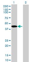 Western blot - SPESP1 antibody (ab72672)
