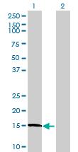 Western blot - LOC40402176 antibody (ab72674)