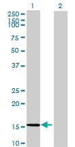 Western blot - HCG3 antibody (ab72677)