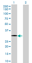 Western blot - DHRSX antibody (ab72693)