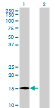Western blot - MS4A15 antibody (ab72697)