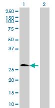 Western blot - LRRN4CL antibody (ab72699)