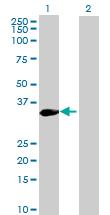 Western blot - KIF6 antibody (ab72702)