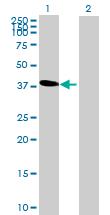 Western blot - C6orf81 antibody (ab72704)