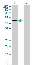 Western blot - UDP glucose dehydrogenase antibody (ab72711)