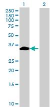 Western blot - FAM21C antibody (ab72720)