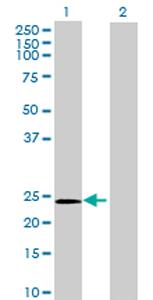 Western blot - GPX8 antibody (ab72722)