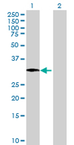 Western blot - PHYHD1 antibody (ab72725)