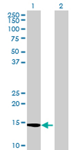 Western blot - LOC494141 antibody (ab72732)