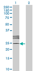 Western blot - LOC619207 antibody (ab72733)