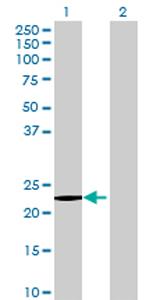 Western blot - HDHD1A antibody (ab72736)
