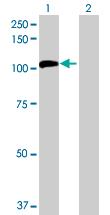 Western blot - Nucleolar protein 14 antibody (ab72741)