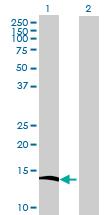 Western blot - NUDT8 antibody (ab72743)