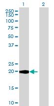 Western blot - LYG2 antibody (ab72744)